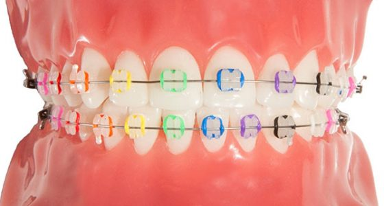 Professional's Guide to Choosing Braces